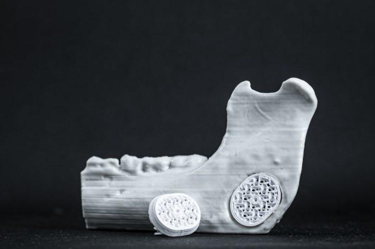 Ein Knochen-Implantat von Particle3D füllt eine Lücke in einem echten Knochen